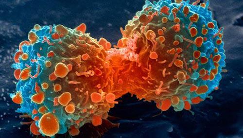 Chưa có thuốc đặc trị khỏi hẳn bệnh ung thư