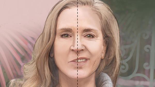Liệt dây thần kinh số 7 khiến khuôn mặt trở nên không cân xứng