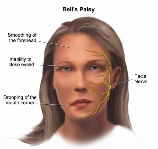 Có nhiều nguyên nhân khác nhau dẫn đến bệnh méo miệng