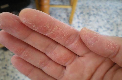 Bệnh chàm khô gây nhiều bất tiện và khó chịu cho người bệnh